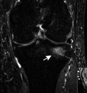 Bone Marrow Lesion for OBuzz