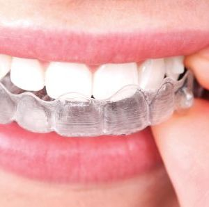 how to take care of your clear aligners