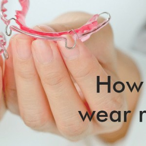 how long to wear retainers after braces
