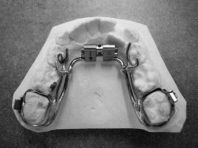 Disjoncteur mandibulaire 3