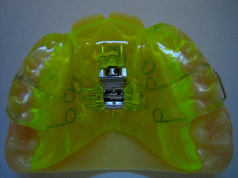 Appareil dentaire vérin 2 D sur modéle 3 D.