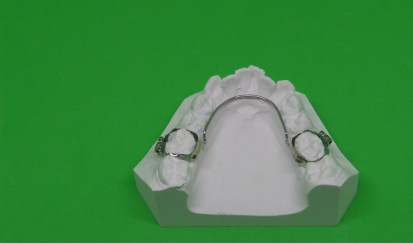 appareil orthodontie fixe.Arc lingual.