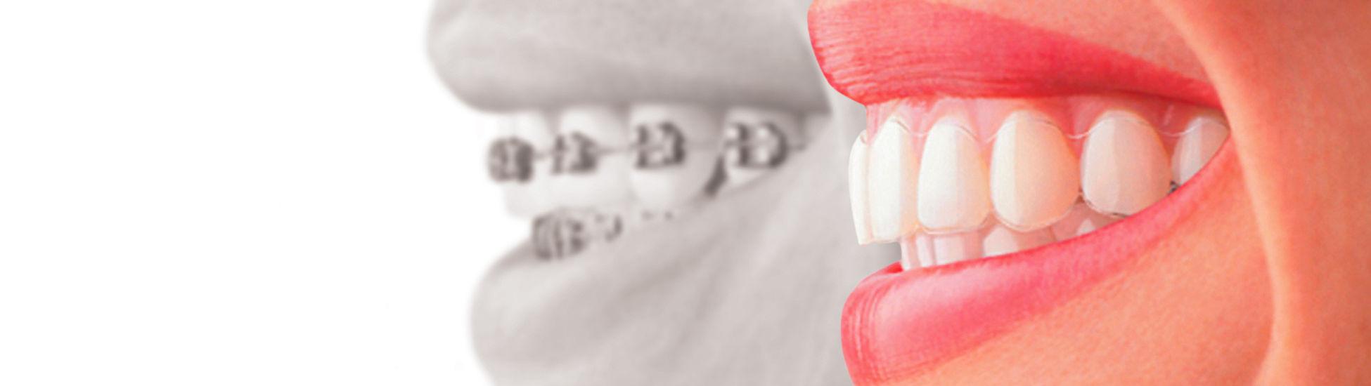 Orthodontiste Amp Pdodontiste Crteil 94000