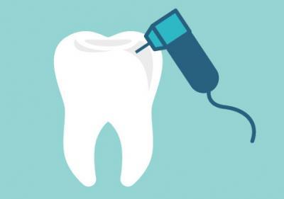 Quest Ce Que La Prophylaxie Dentaire Orthodontiste