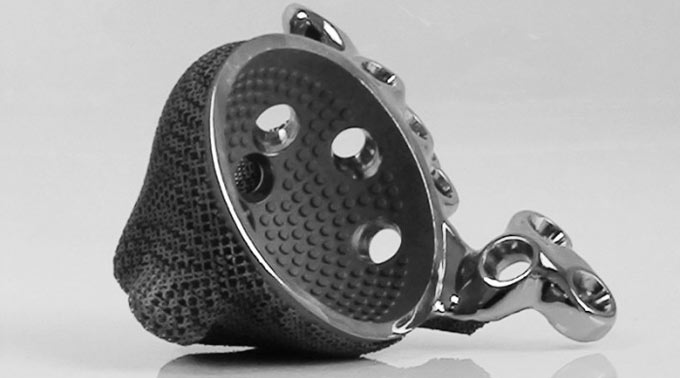 3dp_materialise_Mobelife_Implant