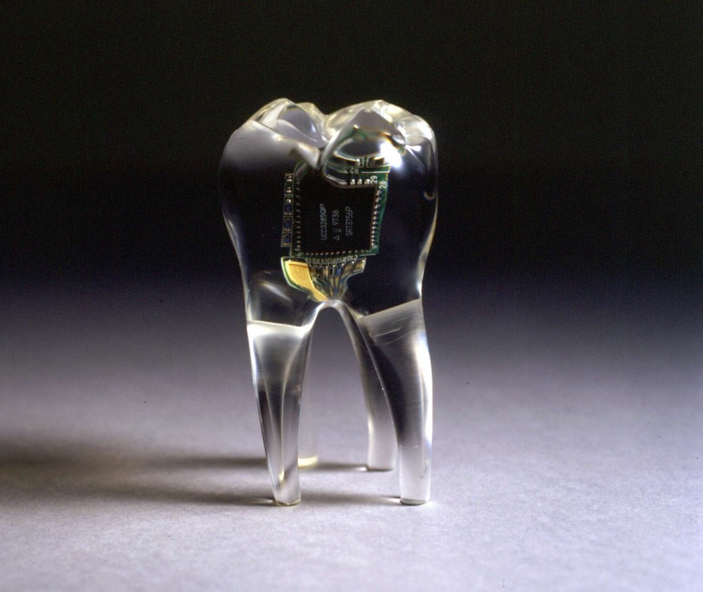 implatables-wearables-e141382090755623142624