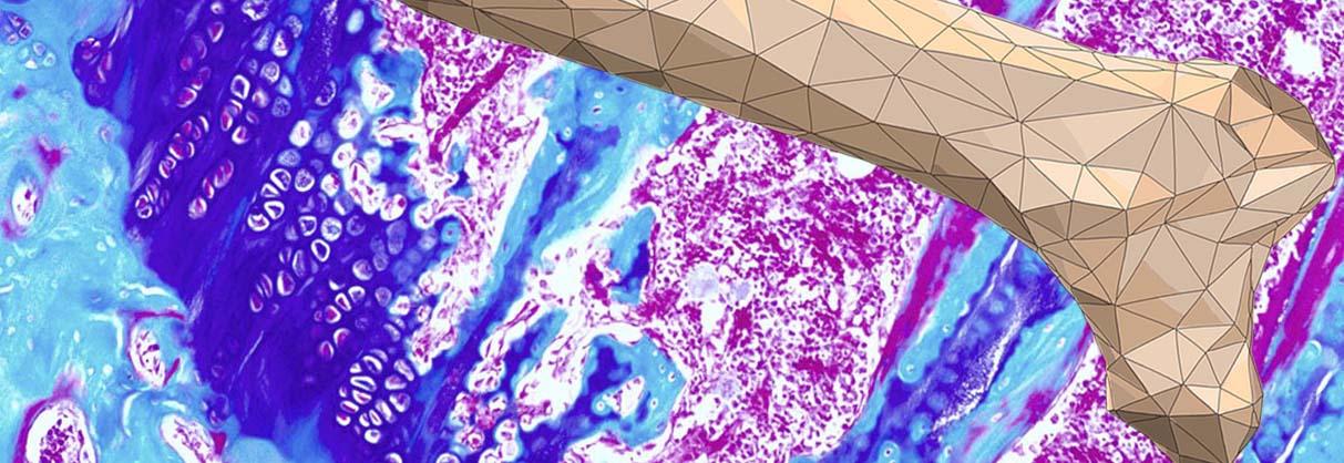 kasios_bone_therapeutics_3D_print_osteoporosis