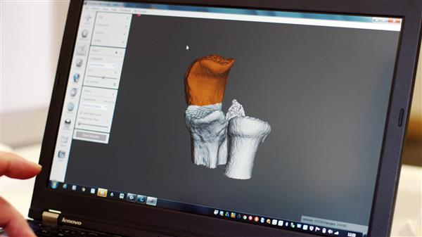 london-private-surgeon-boyd-goldie-adopts-3d-printing-for-surgical-planning-2
