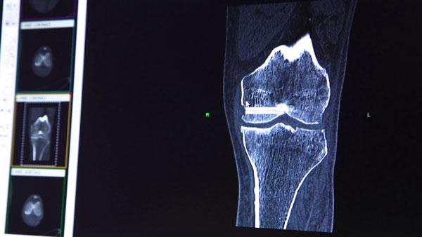 CT-scan-review_CONFORMIS