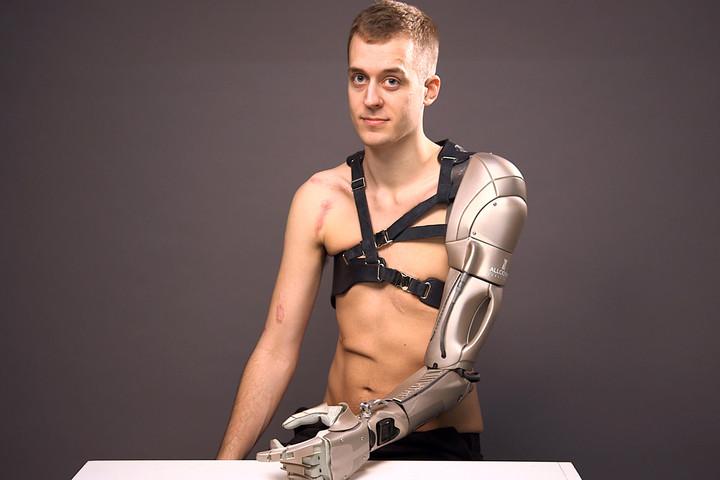 prosthetic-arm-0002-720×720