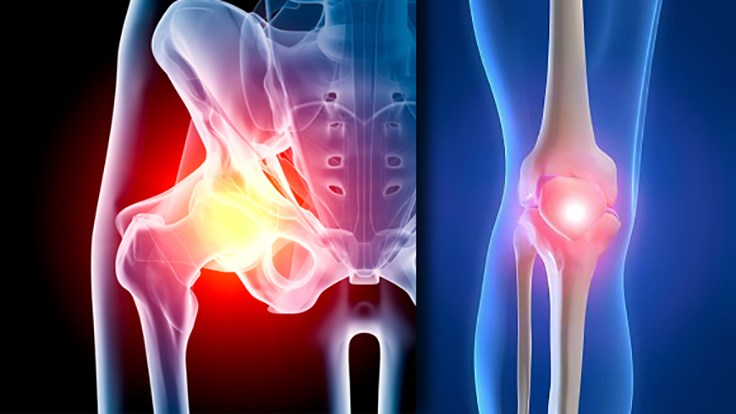 hip-knee-implants