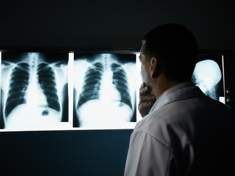 Doctor looking at chest x-rays in dark room