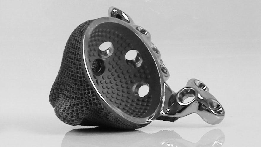 3d-printed-hip-implant-1