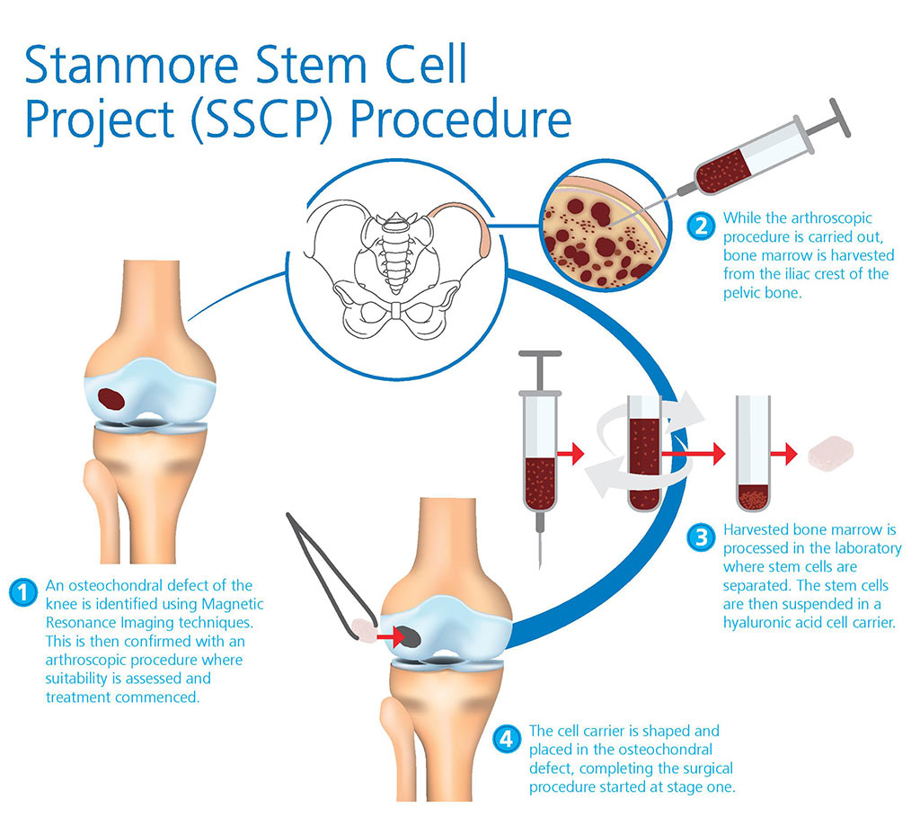 Repairing Damaged Knee Joints With Cartilage Stem Cell