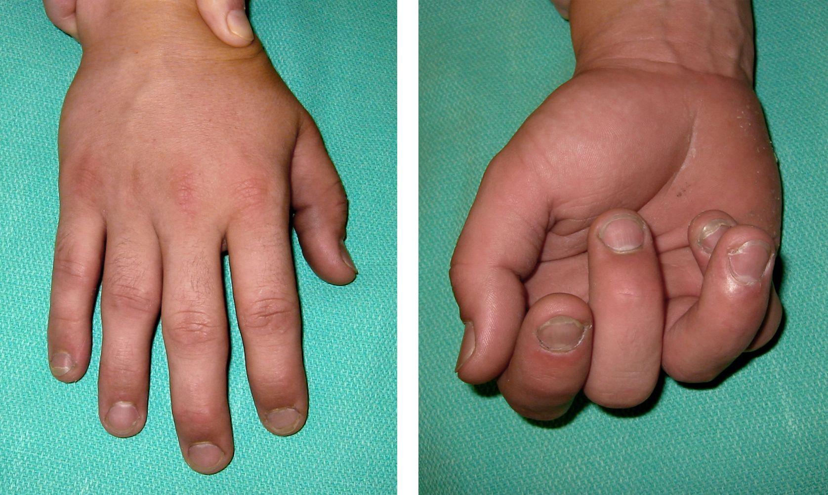 Tip Finger Fracture Hairline