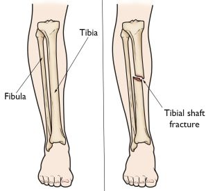 Tibia (Shinbone) Shaft Fractures  OrthoInfo  AAOS