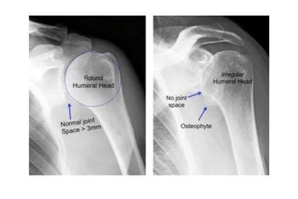 Shoulder Osteoarthritis and Shoulder Arthroplasty