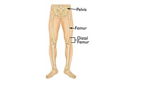 FRACTURES OF THE DISTAL FEMUR