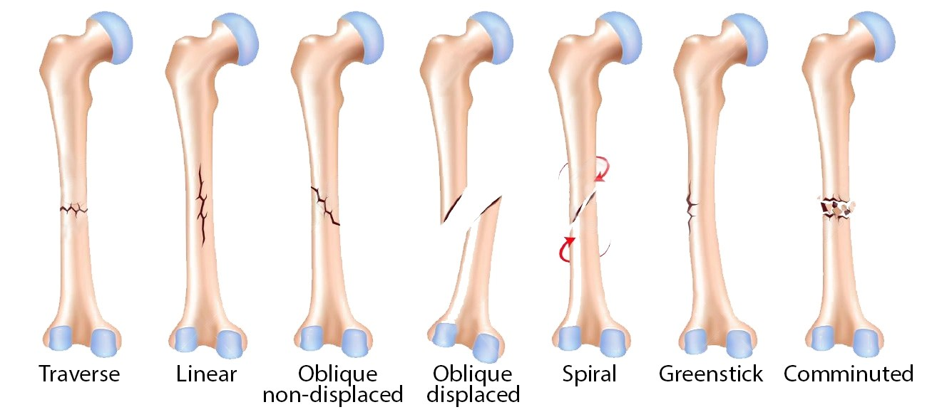 Fractures: Sports Injuries
