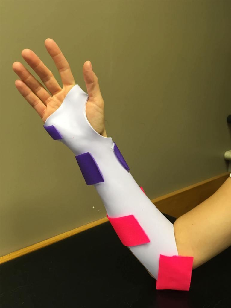 OI Custom Hand Splint