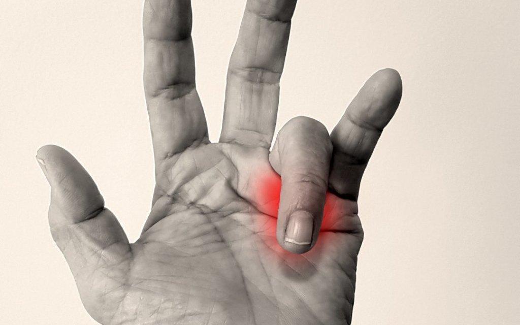 Στενωτική Τεντοελυτρίτιδα των Καμπτήρων Τενόντων των Δακτύλων(Trigger Finger)