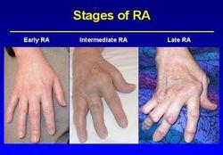 250px-arthrite_rhumatoide.jpg