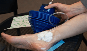 Photo of Inspired by a plunger, new device cuts wound-healing costs