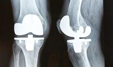 Photo of Can a total knee arthroplasty be both rotationally unconstrained and anteroposteriorly stabilised?