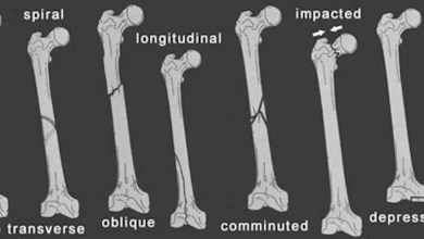 Photo of BMP-7 Versus BMP-2 for the Treatment of Long Bone Nonunion