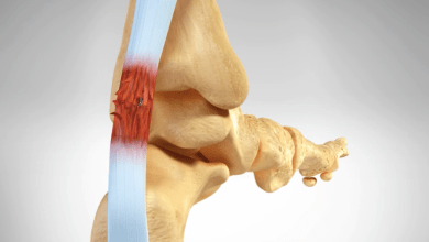 Photo of CoNextions Medical Develops Breakthrough Soft Tissue Repair Technology