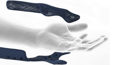Photo of 3-D printing: The new frontier in orthopaedic medicine