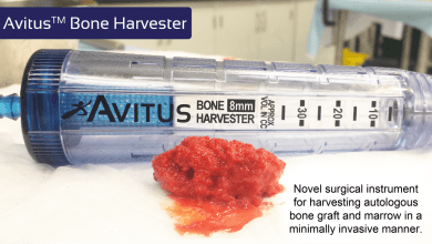 Photo of Avitus Orthopaedics Receives 510(k) Clearance and Launches the Avitus™ Bone Harvester