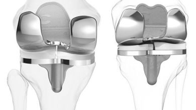 Photo of Study Finds High Satisfaction Amongst Patients with ConforMIS Customized Total Knee Replacements