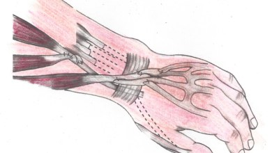 Photo of Surgery that restores hand and elbow function in quadriplegics is underused