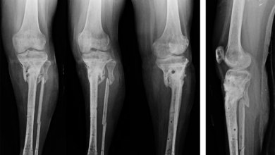 Photo of Fractures That Fail to Heal May Be Predictable Based on Patient Risk Factors