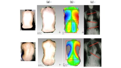 Photo of A New System to Detect Spinal Deformity