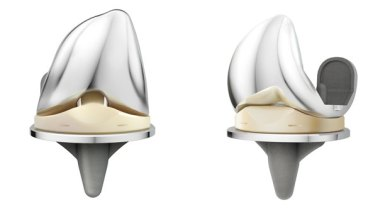 Photo of New UK joint registry data confirms positive early results for the DePuy Synthes ATTUNE® Knee System