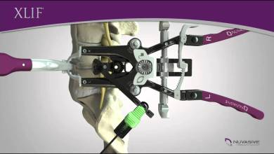 Photo of NuVasive announces new evidence-based recommendation released from NICE (U.K.) for Lateral Interbody Fusion