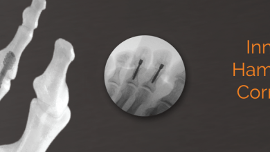 Photo of Centric Medical™ Announces Initial Cases for Hammertoe Correction System