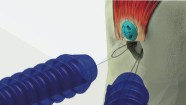 Photo of Ziptek LLC Receives FDA Approval For ZipE®, the Innovative Knotless Tissue Repair Device
