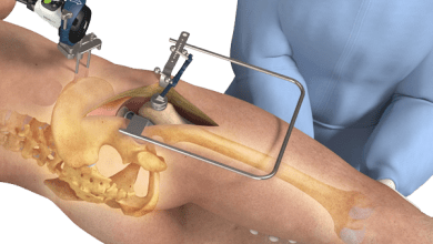 Photo of Intellijoint Surgical Inc. Receives FDA Clearance for Revision THA with intellijoint HIP®