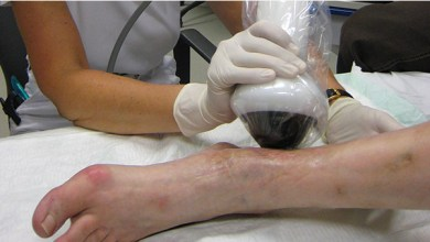 Photo of FDA permits marketing of device to treat diabetic foot ulcers