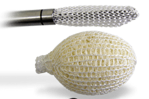 Photo of Spineology Completes Enrollment in IDE Trial for Mesh Fusion Implant