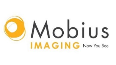 Photo of Mobius Imaging Receives 510(k) Clearance for Airo® CT Pediatric Applications