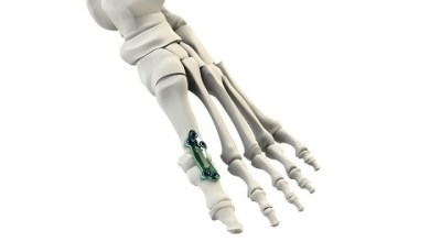 Photo of CrossRoads® Extremity Systems Announces Launch of the Active Stabilization™ MPJ Implant System