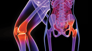 Photo of Planned Orthopedic Surgery Spending Increased 44 Percent to $25 Billion Since 2010 as Generation X Americans Opt for Knee and Hip Replacements at Earlier Age