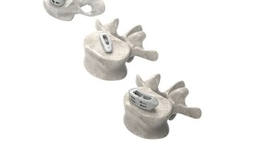 Photo of Astura Medical Receives FDA 510(k) Clearance  For Cervical and Lumbar HA PEEK Interbody Systems