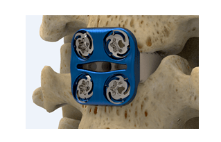 Photo of Orthopaedic Surgeon Dr. Jeffrey Carlson Completes Milestone Case With SpineFrontier's Invue Technology