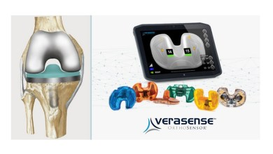 Photo of OrthoSensor Announces Milestone Of 50,000 VERASENSE Sensors Distributed Globally