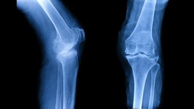 Photo of Published Regenexx Research, Involving Stem Cells And Platelets, Shows Promise For Treating Osteoarthritis Of The Knee
